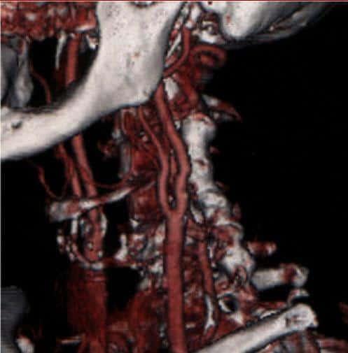 carotid CT angiography