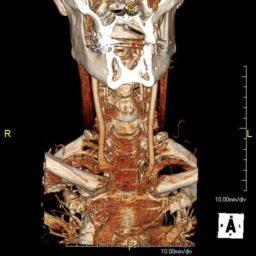 Carotid Angiography